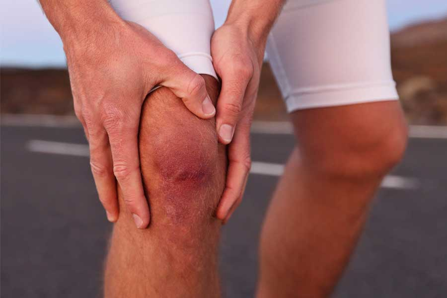 why your knees might need physical therapy